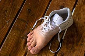 Athletes Foot Treatment in Richardson, TX
