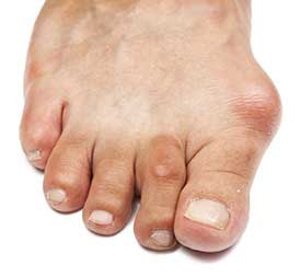 Bunions Treatment in Richardson, TX