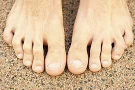 Hammertoe Treatment in Sunnyvale, TX